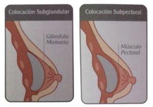 Mamoplastia: colocación subpectoral y subglandular del implante.