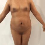 Paciente antes del tratamiento de la lipoescultura y de la mamoplastia.