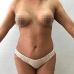 Paciente después del tratamiento de la lipoescultura y de la mamoplastia.