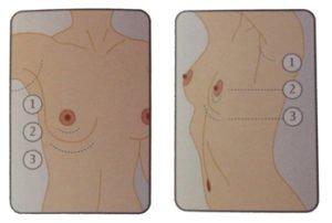 Localización de la incisión para poner el implante.
